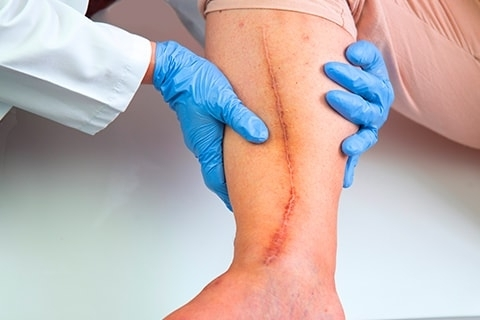 Speak to a Leading Expert on Varicose Veins in Kalamazoo