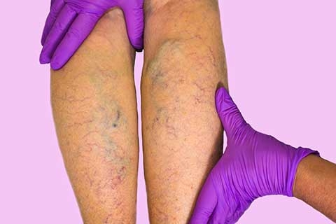 Learn More About Varicose Veins from Kalamazoo's Leading Expert
